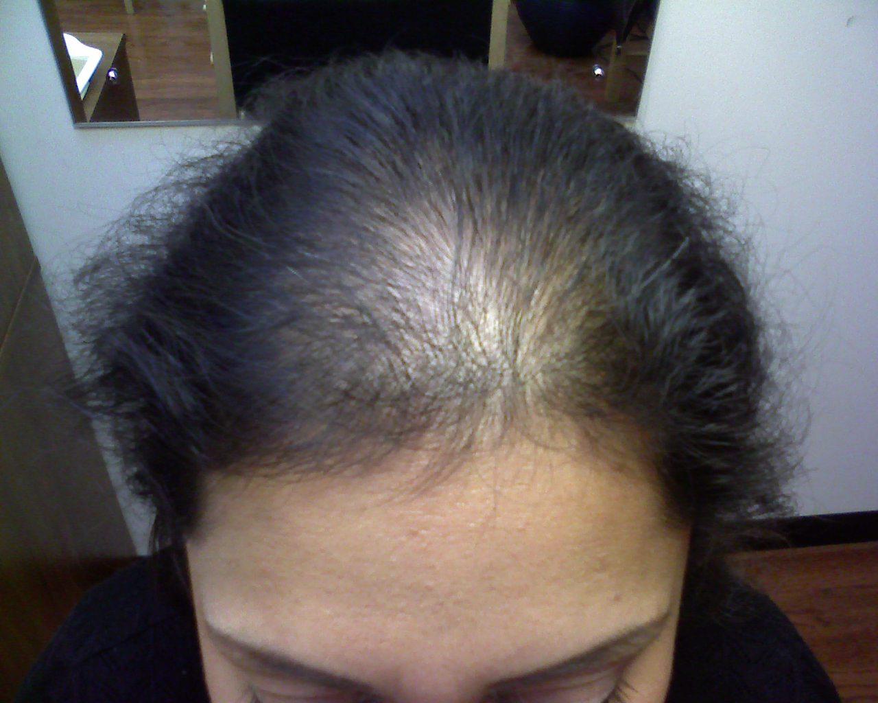 При каких заболеваниях происходит сильное выпадение волос