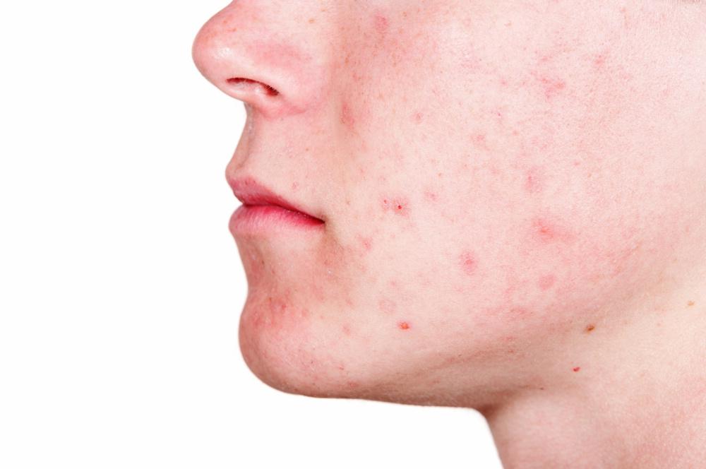 Как убрать следы от прыщей на лице (удалить) - косметология, отзывы, народные средства