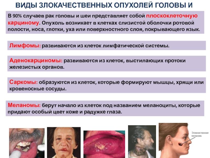 Плоскоклеточный неороговевающий рак левого угла рта