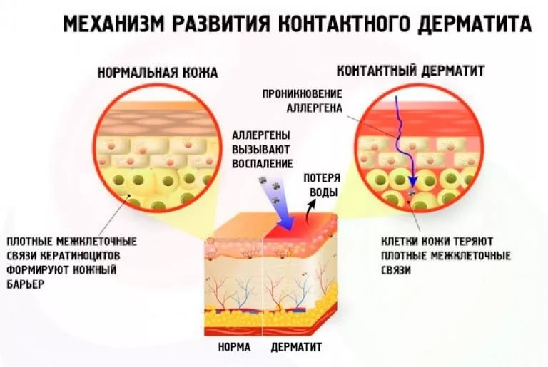 Нейродермит у взрослых и детей — причины, методы лечения