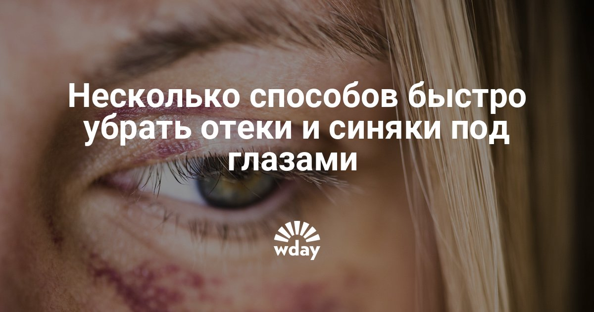 Почему синяки под глазами появляются у взрослых и детей?