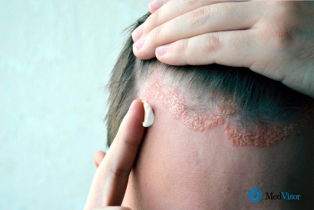 Себорейный псориаз — лечение, причины, симптомы