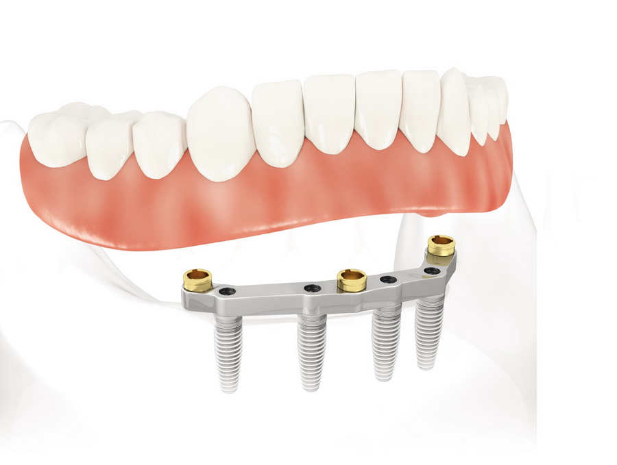 Какие импланты зубов лучше поставить, обзор цен