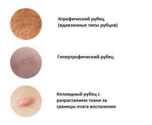Коллоидные рубцы: причины появления и лечение