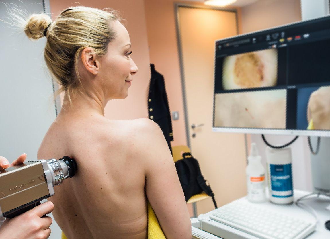 Что такое дерматоскопия и зачем она нужна