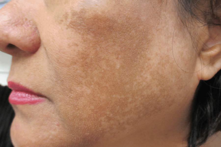 Медикаментозное лечение мелазмы на лице. мелазма. диагностика и лечение. какие бывают виды мелазмы