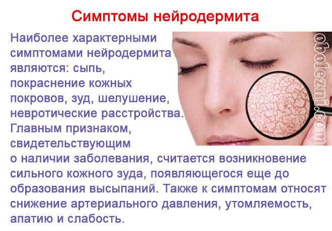 Нейродерматиты. виды, фото и лечение у взрослых, детей. причины и симптомы
