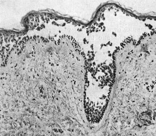Вульгарная пузырчатка: симптомы, причины появления