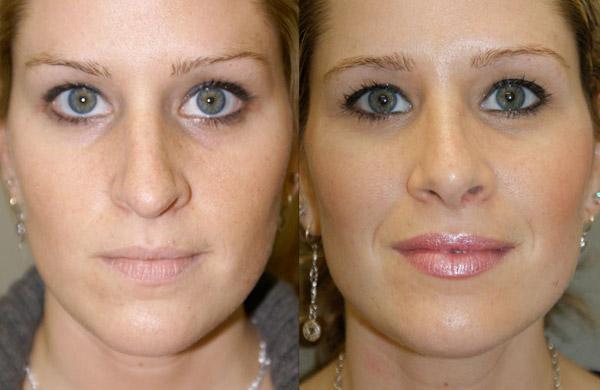 Септопластика: фото до и после, как проходит операция с помощью лазера, видео