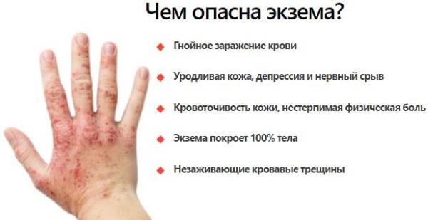 Сухая экзема на руках. фото, причины и лечение, мази, народные средства
