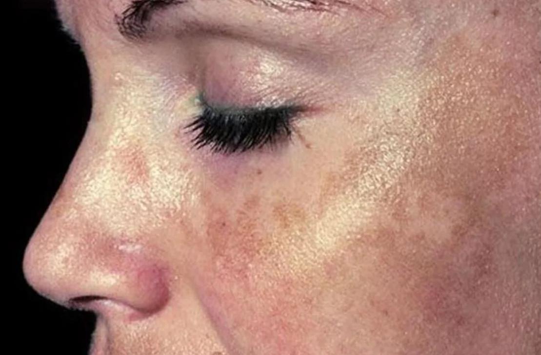 Пигментные пятна на теле: причины появления, методы борьбы