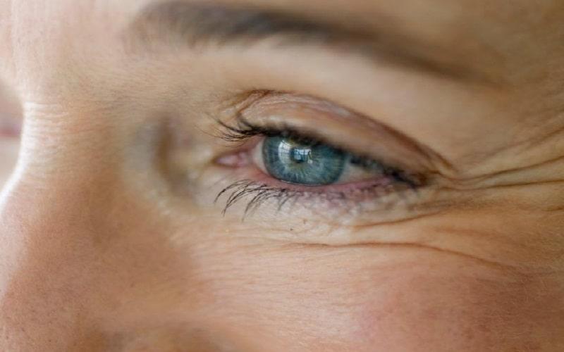 Как избавиться отморщин под глазами: домашние исалонные методы