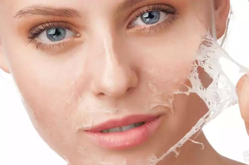 Жирная кожа лица: правильный уход для её красоты