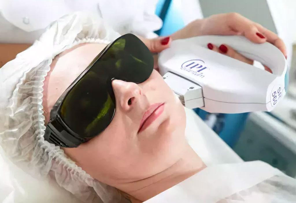 Удаление пигментных пятен на лице лазером, фотовспышкой, жидким азотом, народными средствами