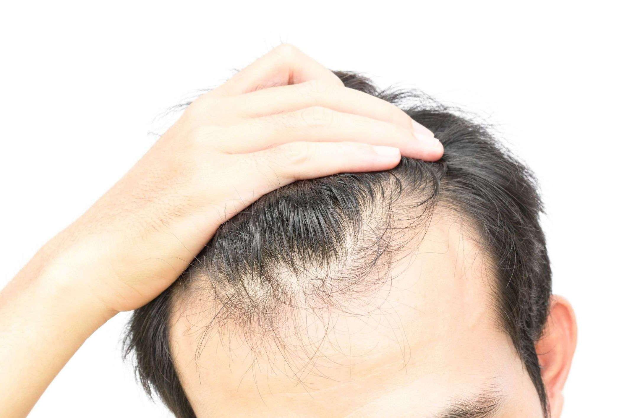 Почему выпадают волосы на голове у женщин – причины и методы борьбы, советы трихолога