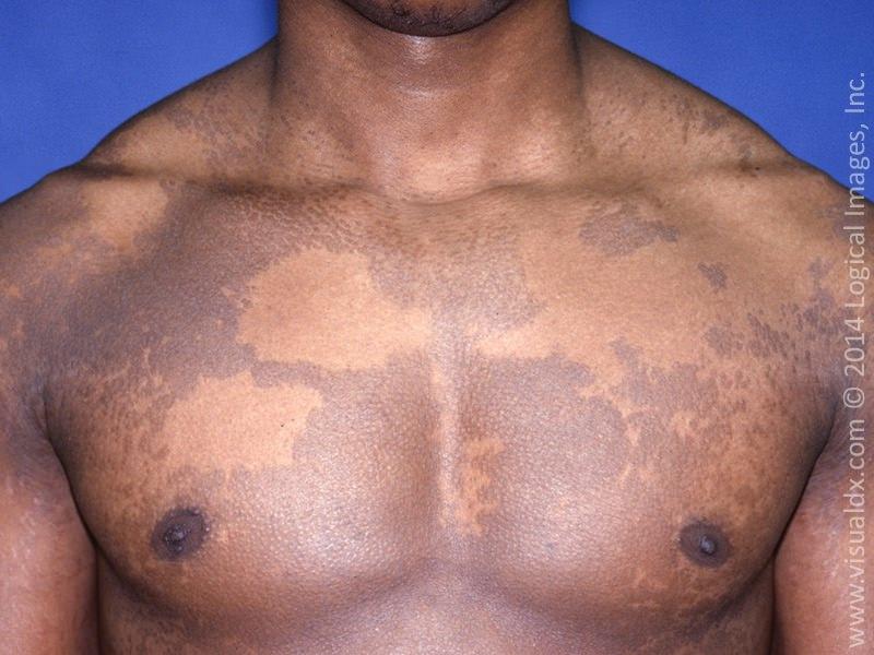 Трихофития (стригущий лишай) – виды и симптомы, пути заражения, диагностика, лечение и профилактика, фото