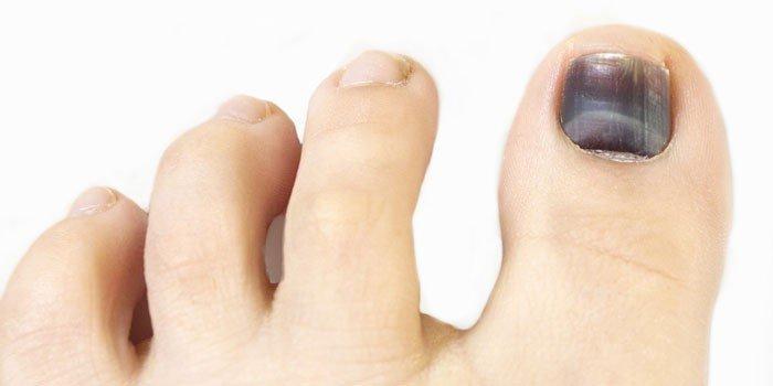Откуда берутся темные пятна под ногтями и как от них избавиться? рекомендации и меры профилактики