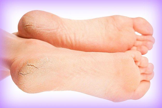 Трещины на пятках, как результат грибкового поражения кожи стопы