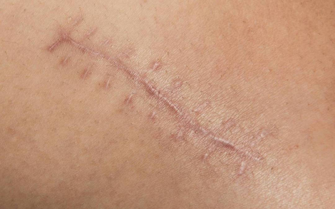 Келоидный рубец: лечение, причины образования и стдии, диагностика