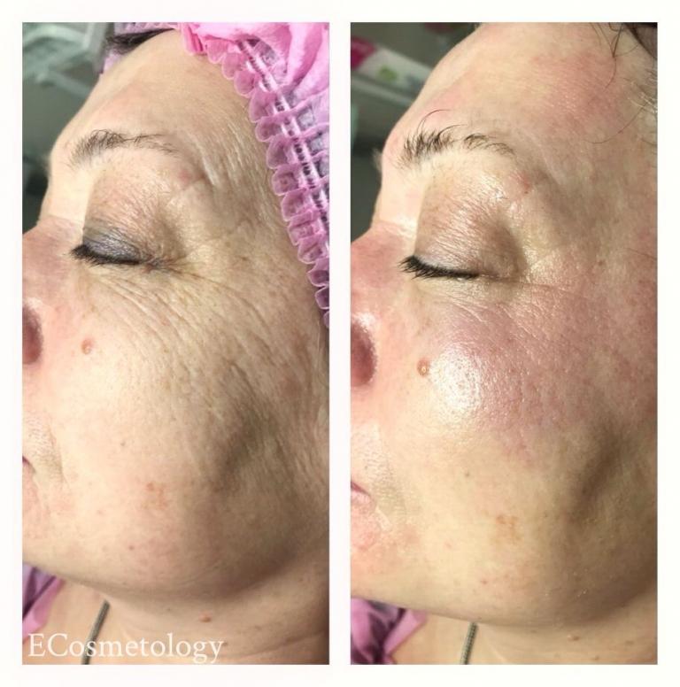 Что такое фракционная мезотерапия кожи лица: эффективность процедуры и показания