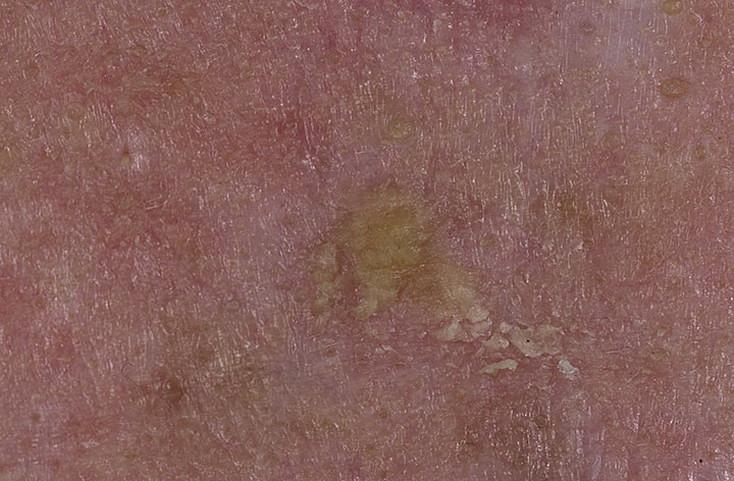 Себорейный кератоз кожи. лечение на голове, множественный, эруптивный, травмированный. мази, народные средства, дерматоскопия