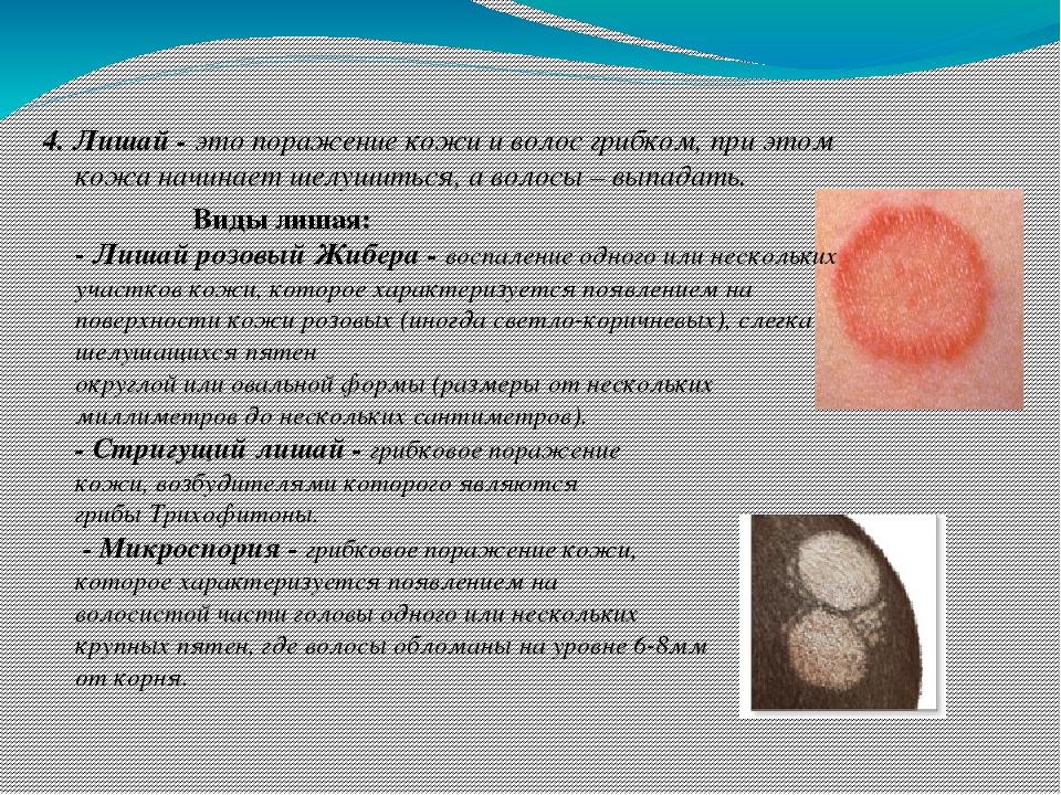 Лишай у людей: симптомы, лечение, виды (фото). симптомы стригущего лишая у человека