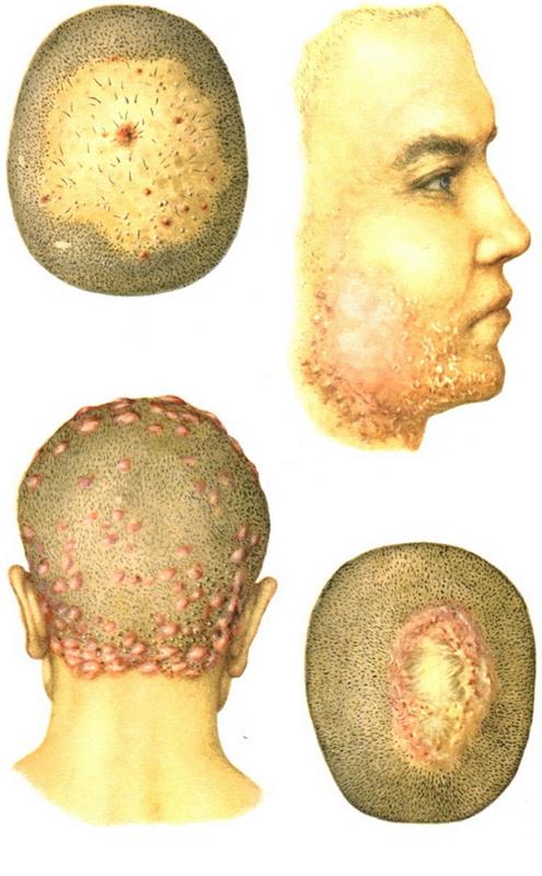 Стрептодермия у детей, взрослых: фото, виды, лечение