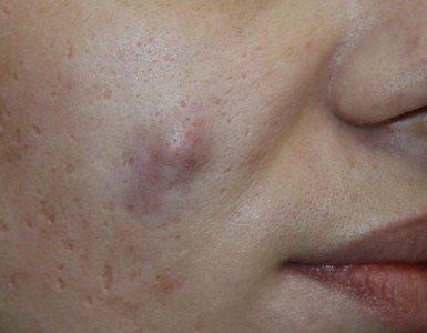 Причины воспаления сальных желез и лечение атеромы за ухом