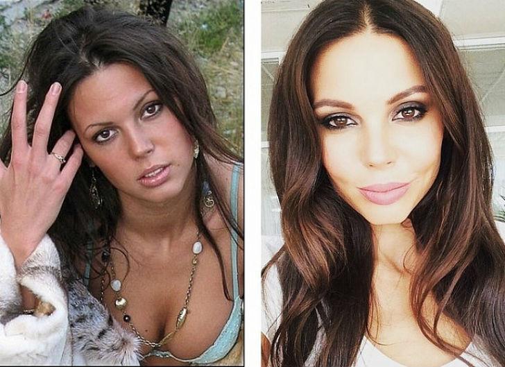 Звезды без макияжа — фото до и после: российские артисты, певцы, как выглядят без фотошопа