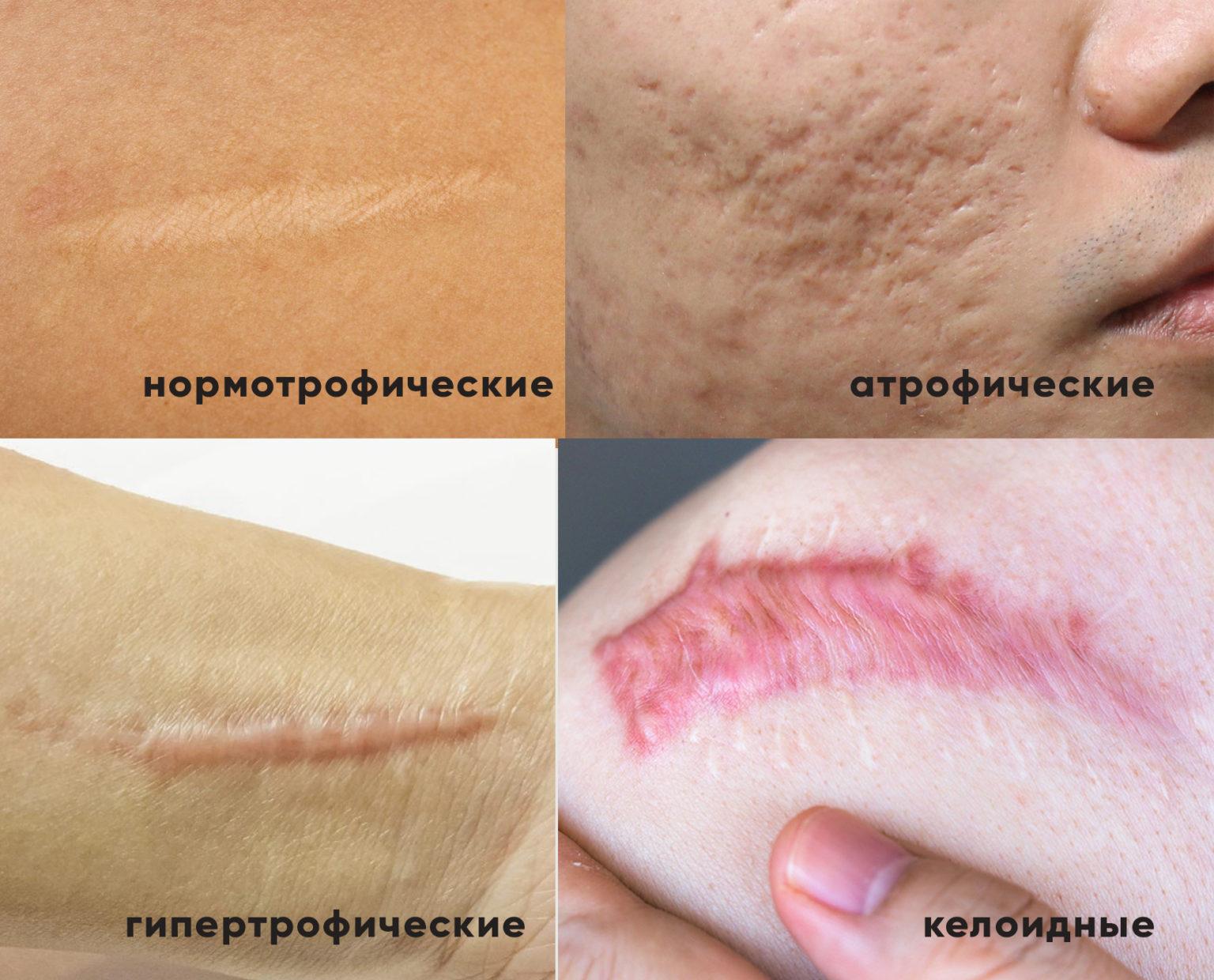 Лечение келоидных рубцов