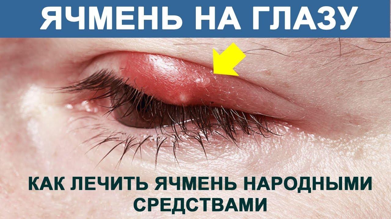 Как лечить в домашних условиях ячмень на глазу