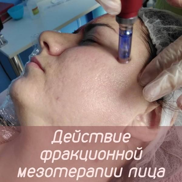 Фракционная мезотерапия: отличия, преимущества, отзывы | скрабы.ру
