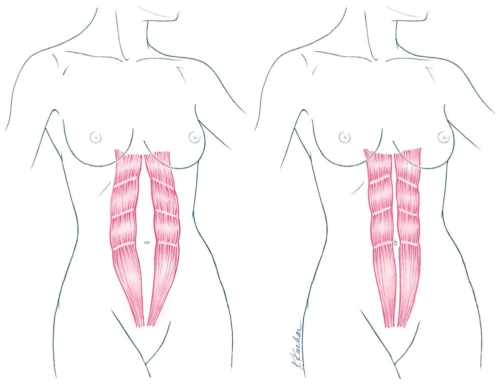 Диастаз после родов — как вернуть прежние формы