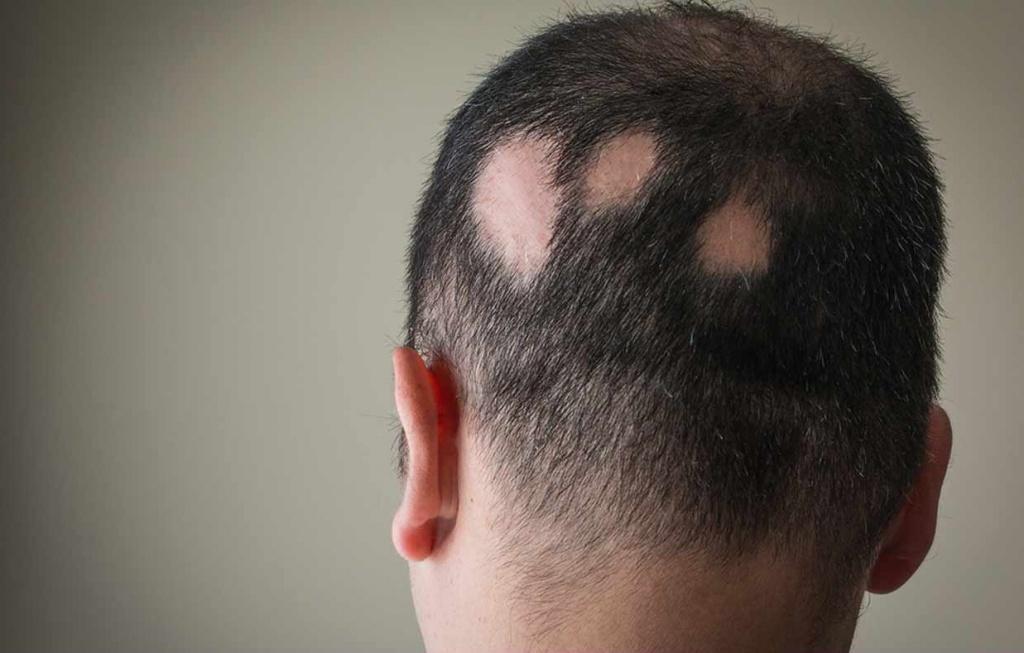 Алопеция (облысение, выпадение волос). причины, виды, лечение и профилактика патологии