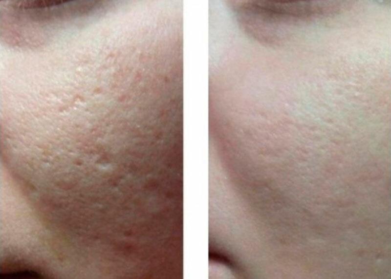 Какими способами можно избавиться от шрама на лице