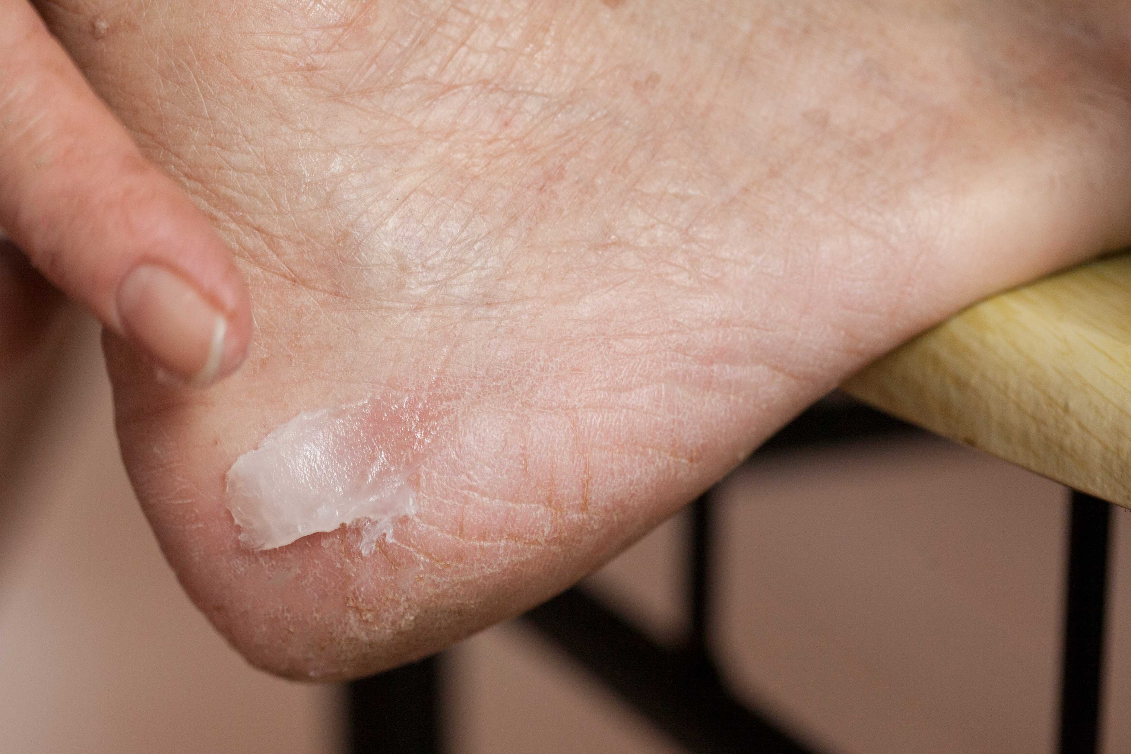 Почему появляются трещины на пятках, их причины и лечение
