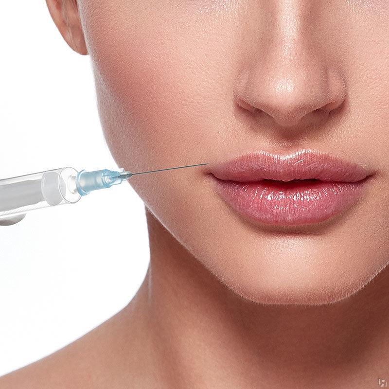 Увеличение губ гиалуроновой кислотой — методы проведения, советы косметологов