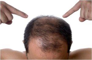 Основные причины раннего облысения у мужчин. методы лечения в молодом возрасте