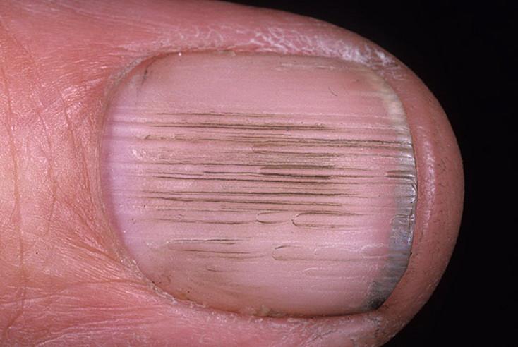 Что такое ониходистрофия ногтей? все о болезни и ее лечении