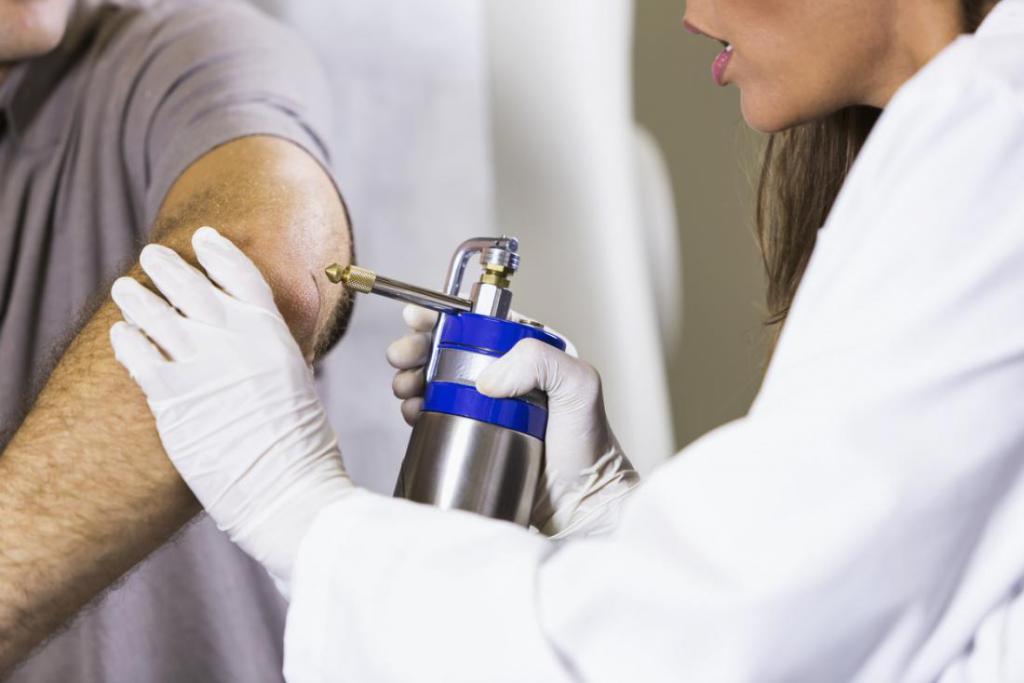 Удаление бородавок жидким азотом: последствия прижигания, советы врача