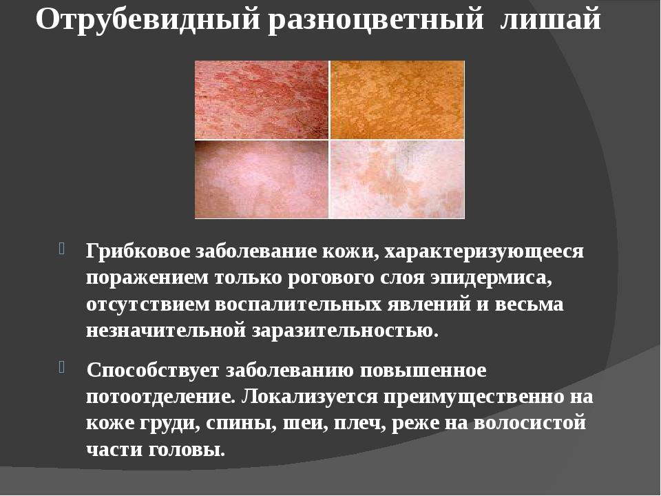 Лишай на лице: у детей и взрослых, фото, лечение и причины