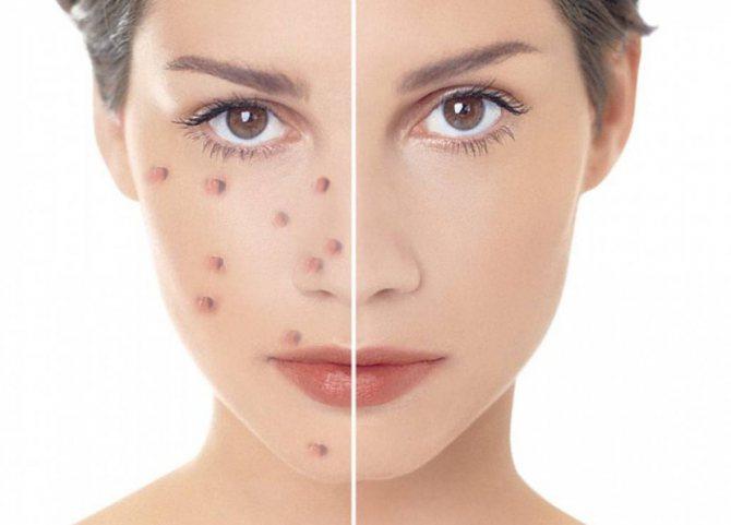 Глубокая чистка лица в домашних условиях: средства для глубокого очищения кожи