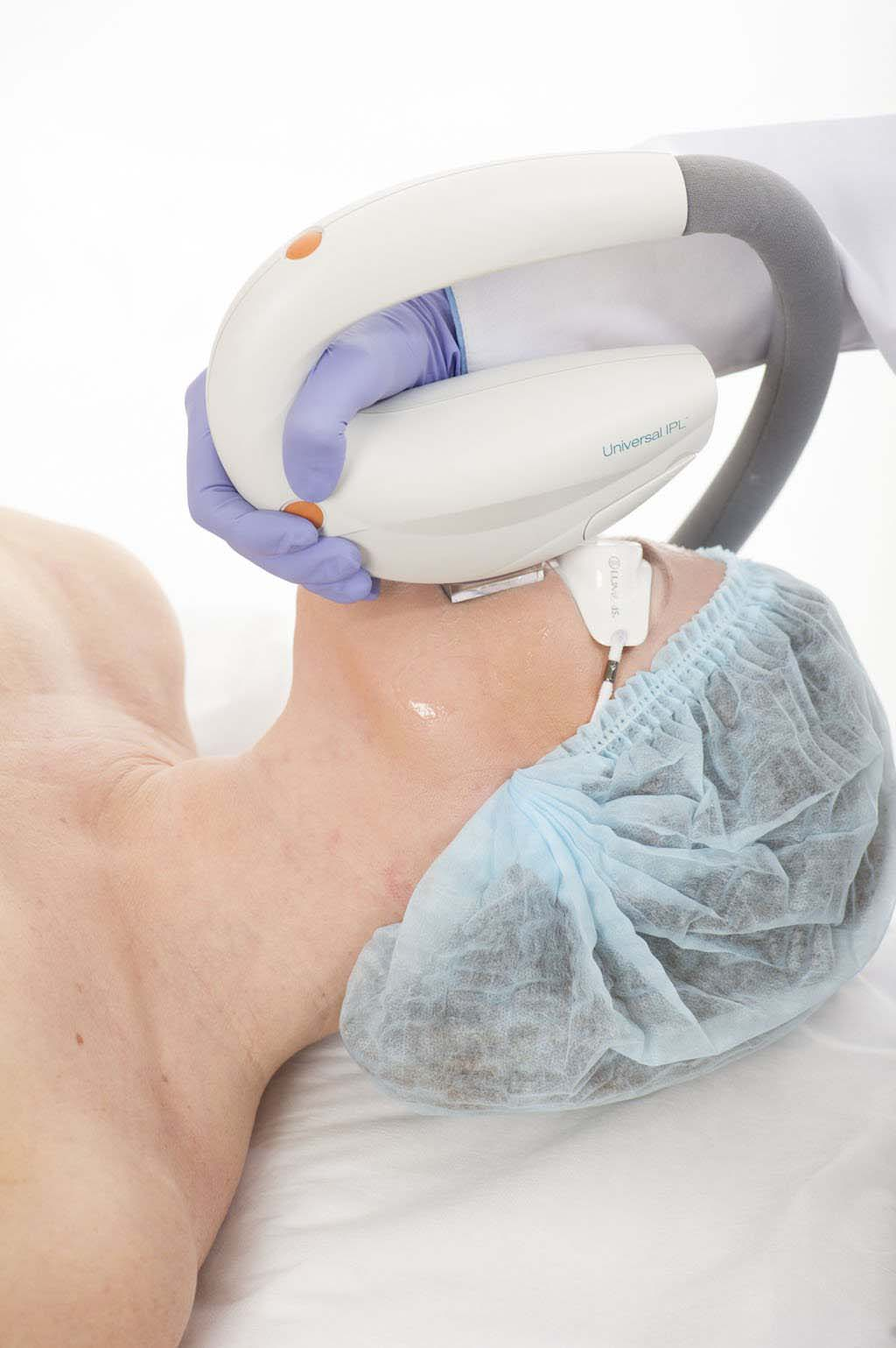 Что поможет убрать пигментные пятна с лица: процедуры и средства
