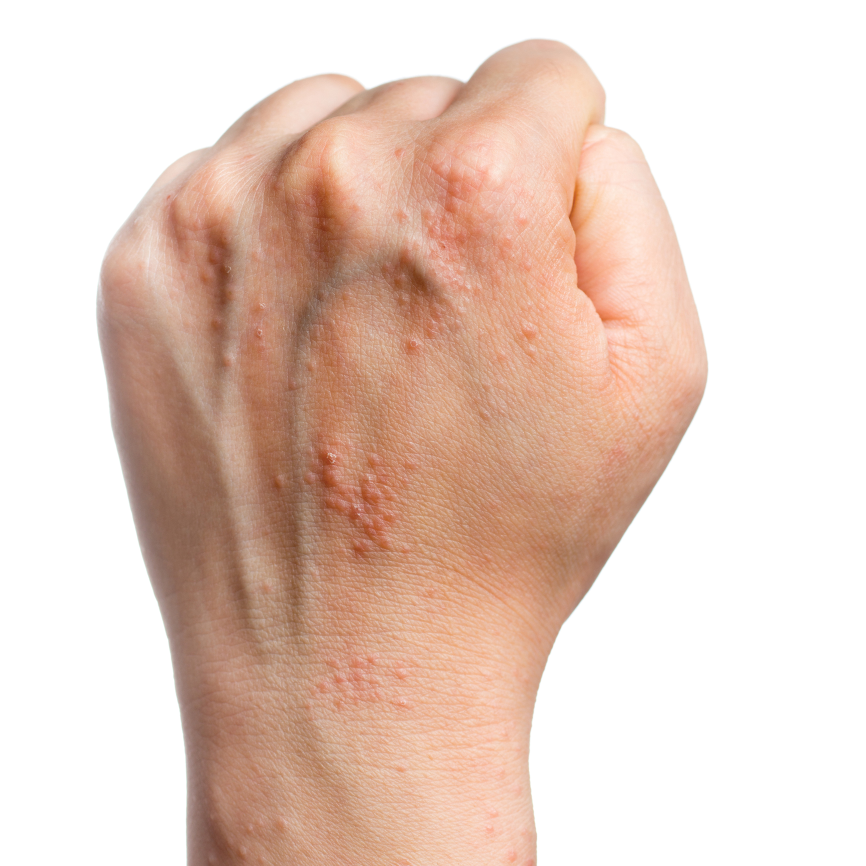 Чесотка – как выглядит (фото). симптомы и лечение чесотки