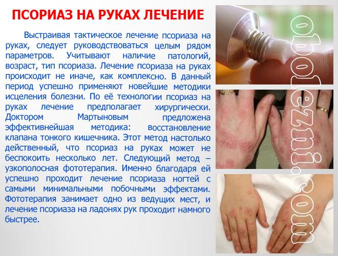 Как вылечить псориаз на голове и теле?