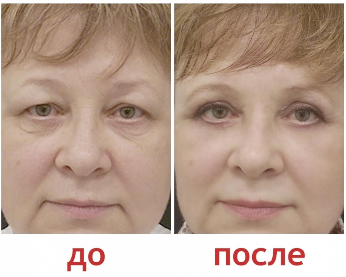 Мужская блефаропластика - цена, фото до и после операции, отзывы пациентов. стоимость операции по пластике мужских век - клиника beauty trend