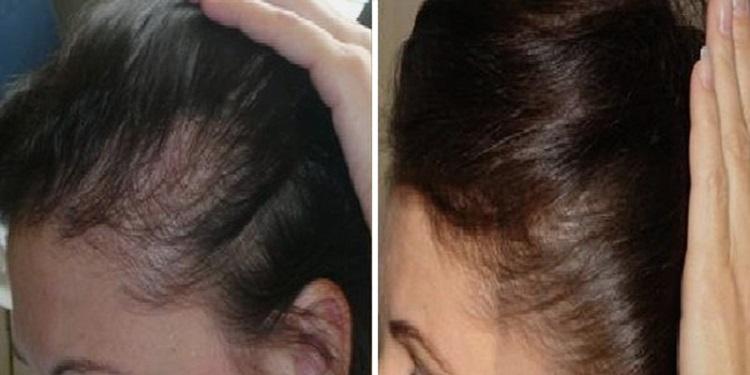Средство от перхоти, сухости и ломкости — это дарсонваль для волос
