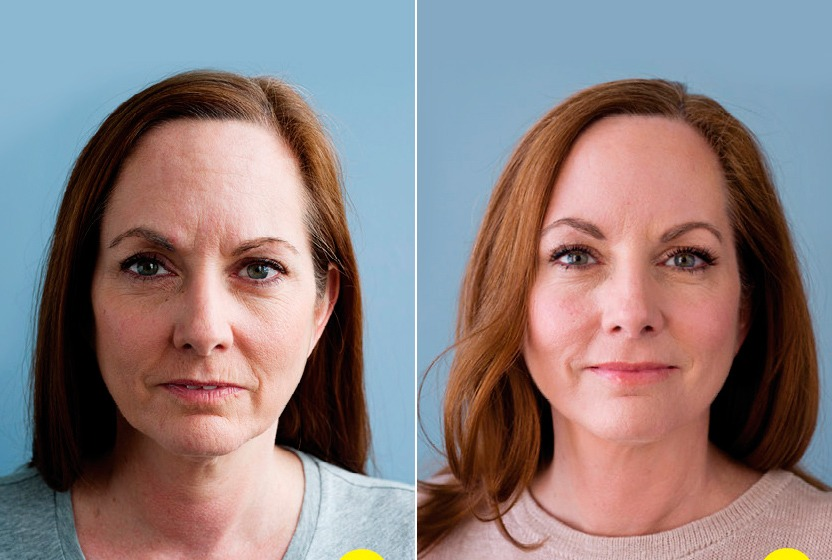Ботокс для лица — полезные свойства и возможный вред | польза и вред