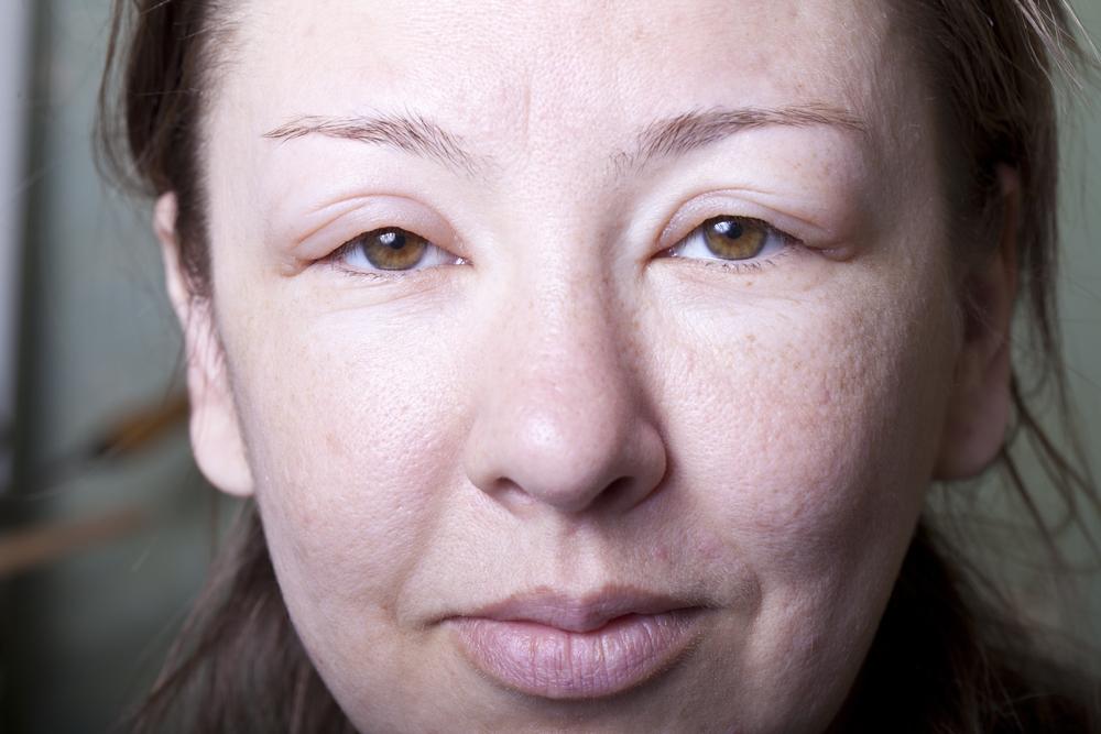 Что делать если опухло лицо после сна