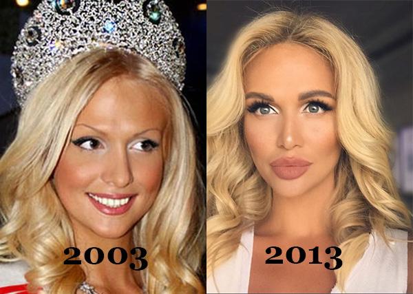 Российские звезды до и после пластики